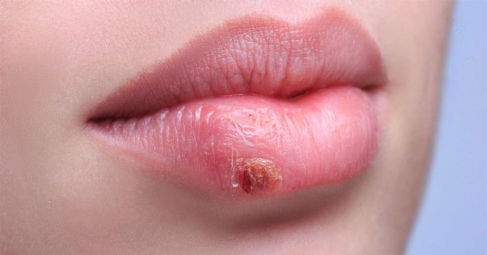 herpes simple labial tratamiento