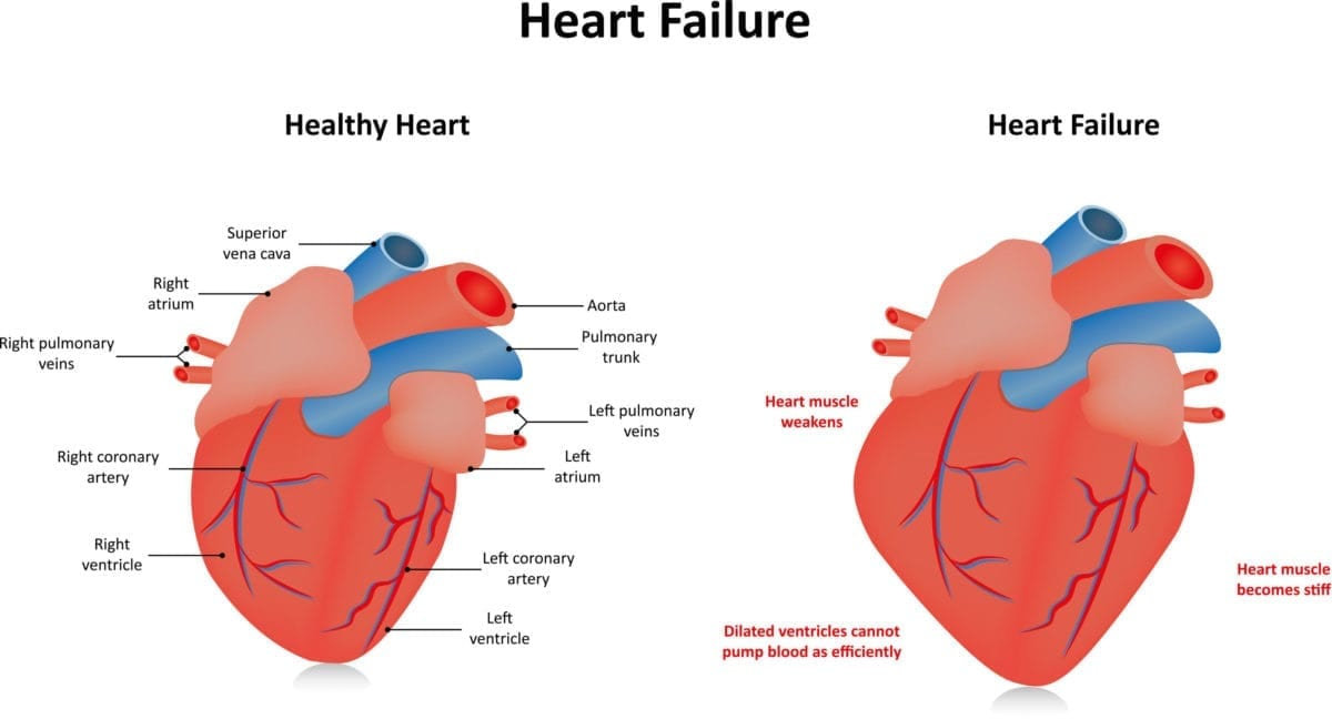 Heart Failure Deaths Increase for Older Adults in 2020